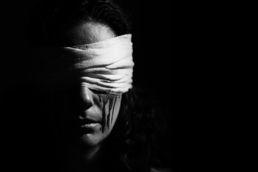 Zwartwit portret van vrouwelijk model bloedende ogen achter verband - Portretshoot - Diana van Neck -Fotograaf Zutphen